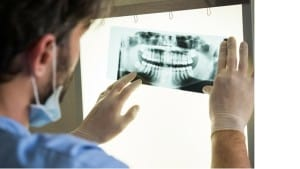 dental x-ray - Francis Dental Provo